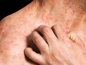 При регулярном лечении можно добиться ремиссии атопического дерматита