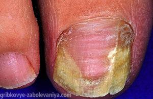 Боковой грибок ногтя фото