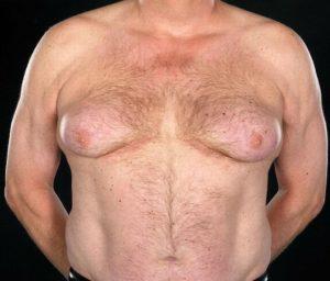 Гормональные препараты провоцируют рост груди у мужчин