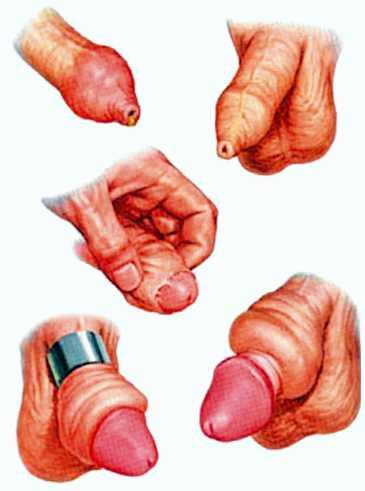 Гипоспадия у мальчиков: что это такое, почему возникает, и как ее лечить,Post navigation