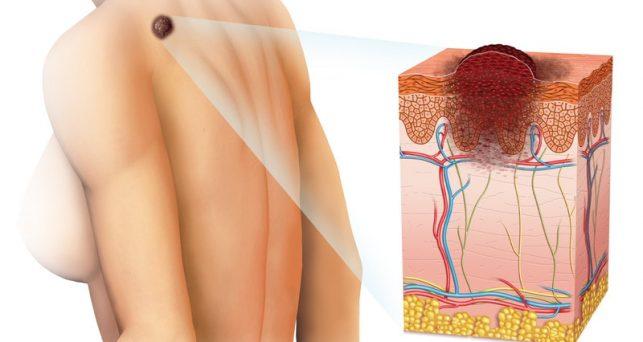 Пятна на коже при раке как они выглядят,Post navigation