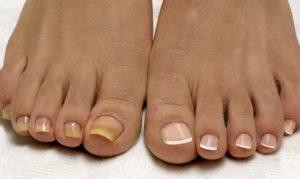 Регулярный уход за ногтями помогает избежать грибка