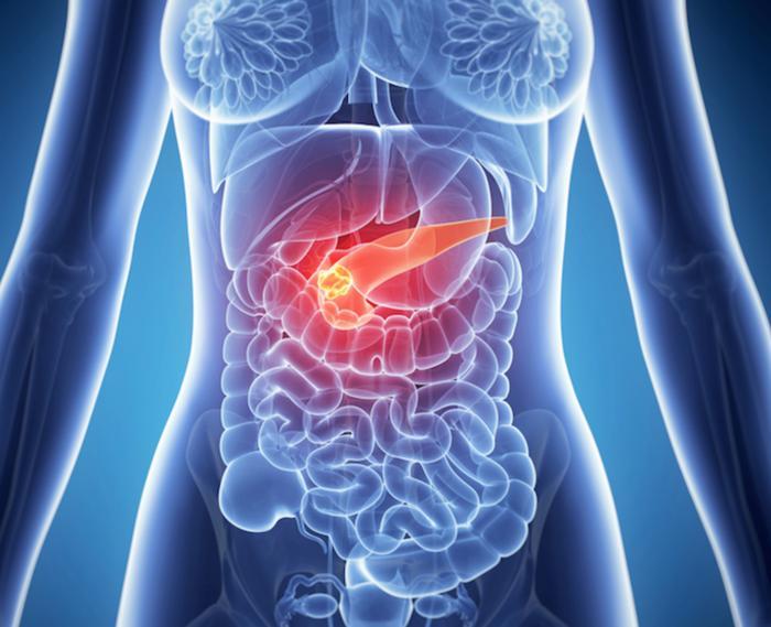 Рак поджелудочной железы: что это такое, причины, симптомы и лечение