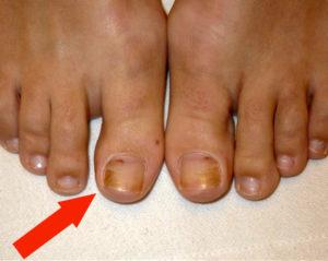 Онихолизис ногтей на ногах