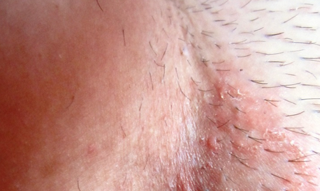 Шелушение кожи бывает вызвано патологическими и безопасными факторами
