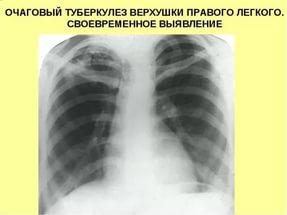 Очаговый туберкулез легких