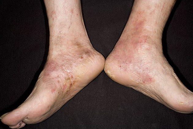 Тилотическая экзема на ступнях