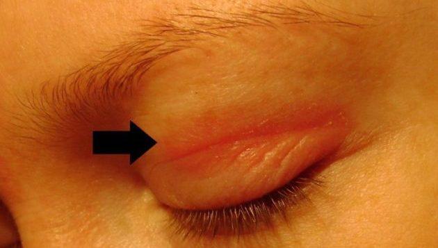 Аллергия век