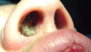 Почему появляются наросты в носу и что делать,Post navigation
