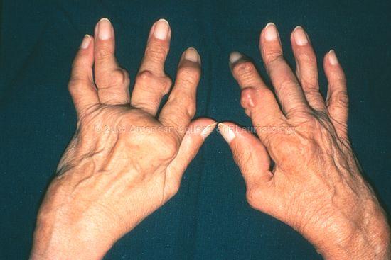 полиартрит
