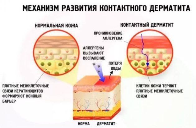 Механизм контактного дерматита