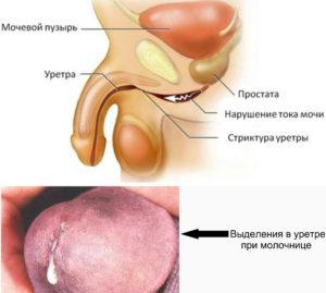Молочница в уретре у мужчин фото