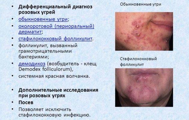 Дифференциальный дерматит