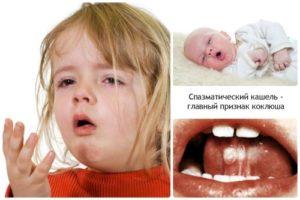 последствия коклюша бывают у детей