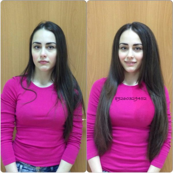 Плюсы и минусы процедуры boost up (прикорневой объем волос)