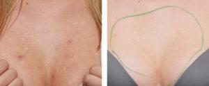 Пигментные пятна под грудью у женщин причины появления на молочной железе,Post navigation