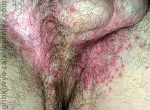 Паховая эпидермофития фото