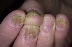 Ямки на ногтях рук и ног что это может быть и как лечить,Post navigation