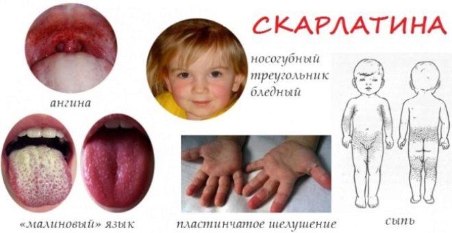 Как протекает скарлатина у детей