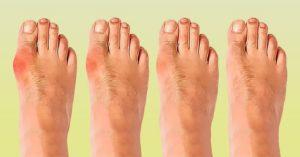 Что делать если появилась косточка на большом пальце ноги,Post navigation