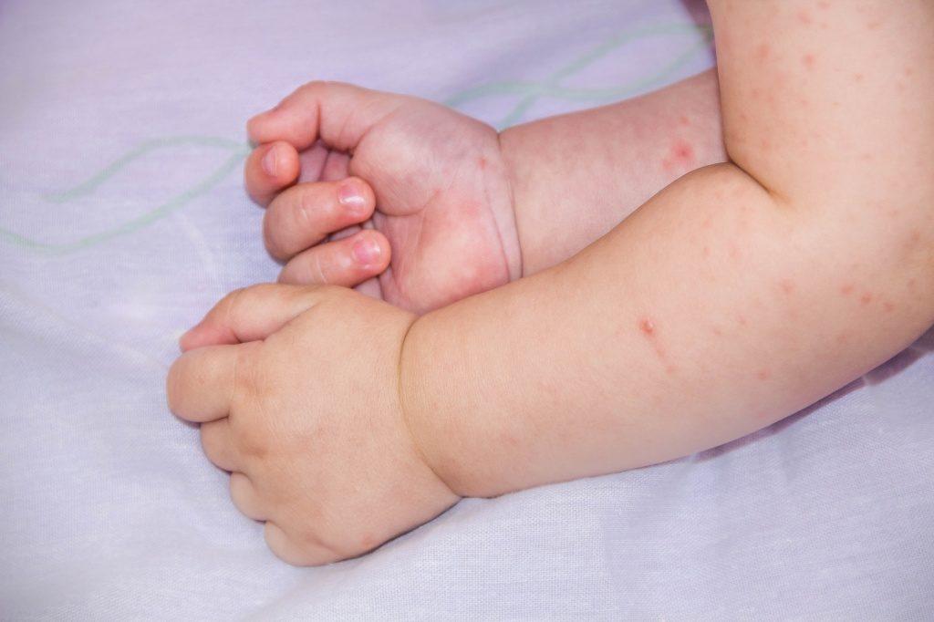Потница на руках почему появляется и как лечить,Post navigation
