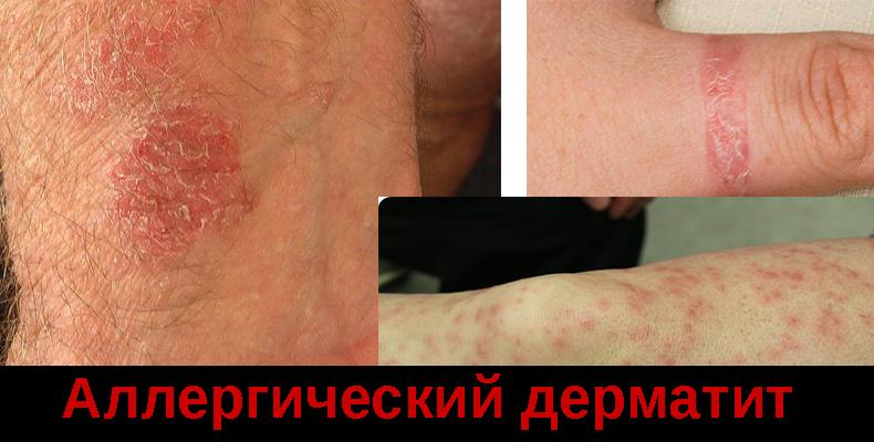 Аллергический дерматит что это такое, причины и лечение,Post navigation