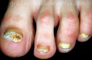 Грибок на ногтях ног онихомикоз