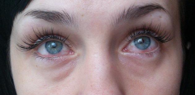 Аллергия на глаза