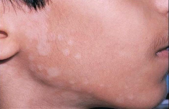 При появлении белого лишая нужно обратиться к дерматологу