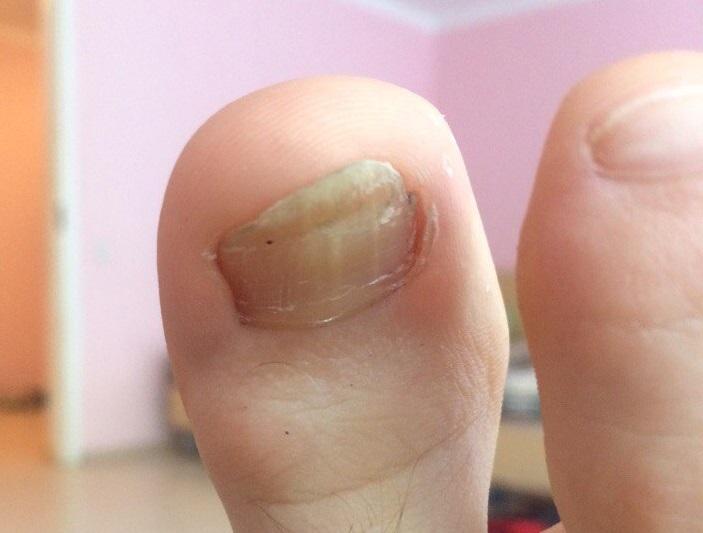 Начальная стадия грибка ногтей,Post navigation