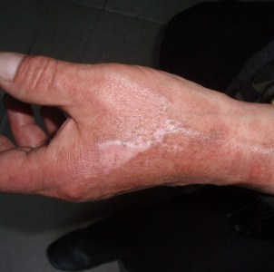 Симптомы, первая помощь и терапия уксусных ожогов