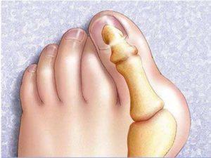 Косточка на большом пальце ноги называется вальгусной деформацией