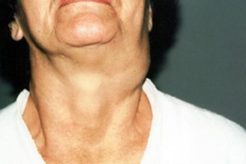 Шишка на шее может появиться независимо от возраста