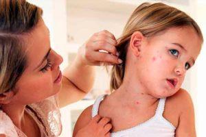 Инфекционный дерматит фото, причины, симптомы и лечение,Post navigation