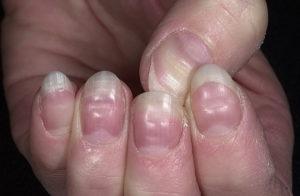 Ямки на ногтях рук и ног появляются из-за нехватки витаминов