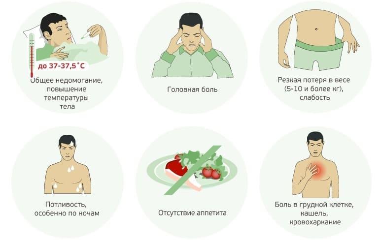 Cимптомы туберкулеза легких на ранней стадии