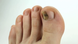 Как отличить грибок ногтей от других заболеваний,Post navigation