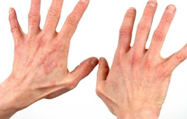 Покраснения на коже рук