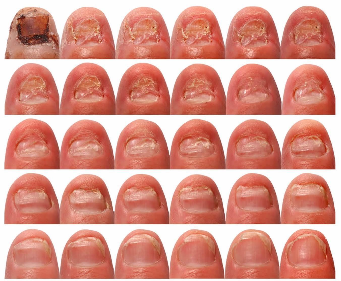 восстановить ногти после грибка