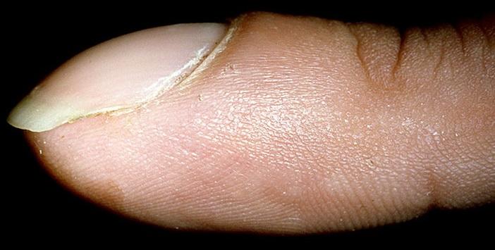 Койлонихия или ложкообразные ногти,Post navigation