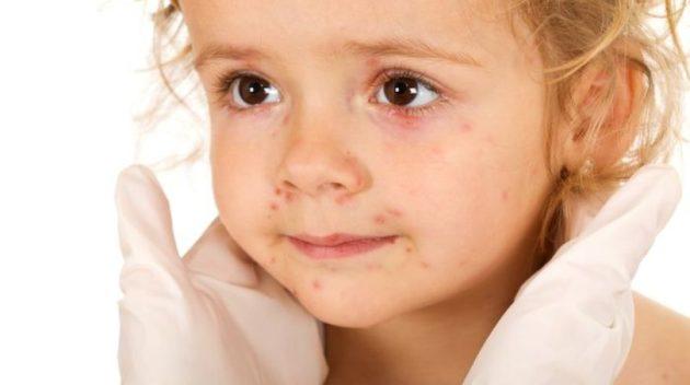 Мелкие пупырышки на коже у ребенка
