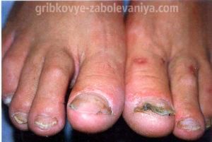 Онихомадезис ногтей на ноге