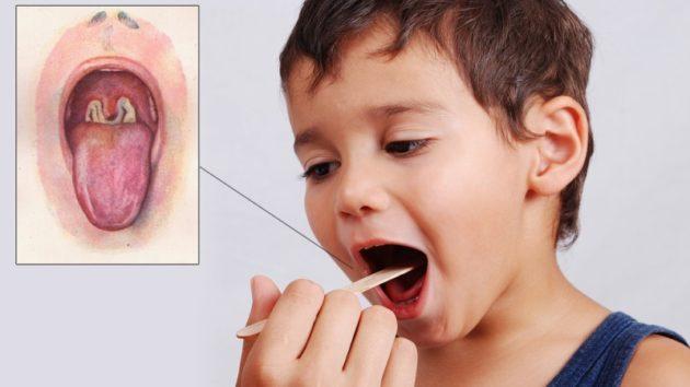 Инфекция в горле