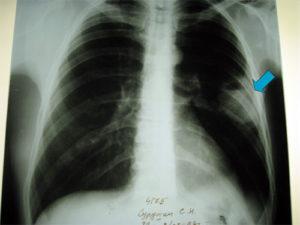 Какие симптомы и осложнения имеет левосторонняя нижнедолевая пневмония