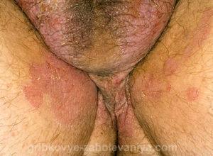 Паховая эпидермофития у мужчин фото