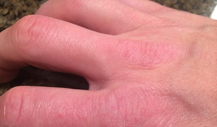 Почему кожа на руках сохнет и трескается все причины,Post navigation