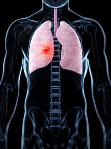 Симптомы и лечение интерстициальной пневмонии