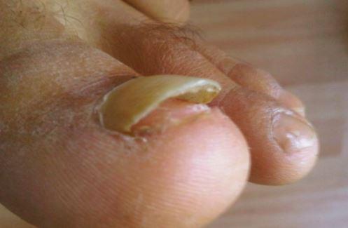 Удаление ногтевой пластины можно проводить в домашних условиях