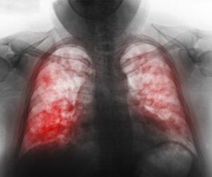Причины возникновения пневмонии