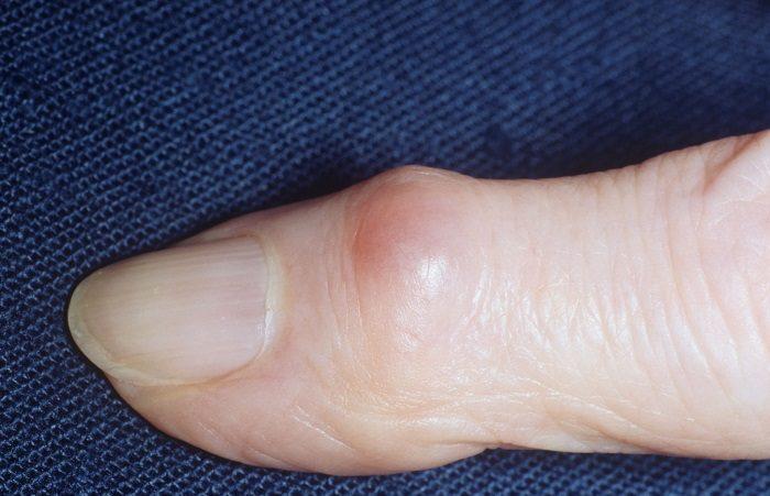 Появилась шишка на суставе пальца руки что это может быть,Post navigation